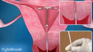 getlinkyoutube.com-Intra Uterine Device (IUD) CopperT Animation | ADMAA