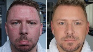 getlinkyoutube.com-HOW TO: COVER ACNE - FOR MEN AND WOMEN - BEFORE AND AFTER