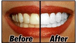 getlinkyoutube.com-BLANQUEA tus dientes en MINUTOS! (remedio casero)
