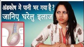 Hydrocele Ka Desi Gharelu Ilaj │ आपके अंडकोष में पानी भर गया हो तो जानिए घरेलु इलाज │ Life Care