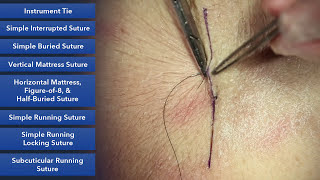 getlinkyoutube.com-Suture Skills Course - Learn Best Suture Techniques