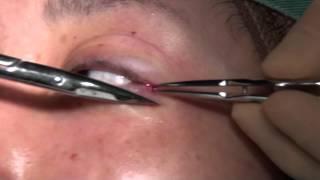 getlinkyoutube.com-高須クリニック  目尻切開手術①  局所麻酔注射、メスで皮膚、粘膜切開、剥離、右側縫合