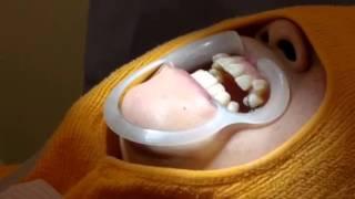 getlinkyoutube.com-医院スタッフのインビザライン矯正治療 東京都 三鷹ハートフル矯正歯科医院