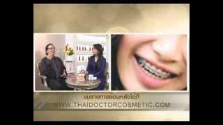 getlinkyoutube.com-การจัดฟันทำให้หน้าเล็ก เรียว | Nida Esth'