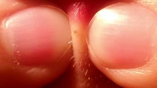 Lip Blackhead Removal