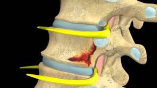 getlinkyoutube.com-Back and Spinal cord