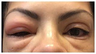 getlinkyoutube.com-How To Remove False EyeLash Extensions (AT HOME)