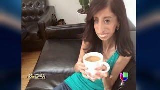 getlinkyoutube.com-La fortaleza de 'la mujer más fea del mundo' - Primer Impacto