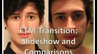 getlinkyoutube.com-FTM transgender transition timeline: slideshow and comparisons (nearly 3 years on T)