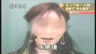 getlinkyoutube.com-[テレビ放送映像]フジテレビでイェソンの手術が紹介されました。