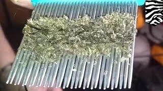 getlinkyoutube.com-بالغون يعلمون ولداً كيف يتخلصمن القمل باستخدام مشط القمل