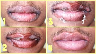 getlinkyoutube.com-TCA Chemical Peel: On Lips | Application + Results | Session #4
