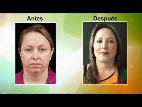 Testimonio Embellecimiento Facial Antes y Después Medellín Colombia