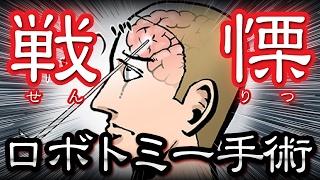 【衝撃】戦慄の医学!ロボトミー手術の恐ろしい歴史・・・【恐怖の事件簿】