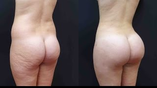 getlinkyoutube.com-Best Brazilian Butt Lift! See her Surgery and Results with 1100cc Per Side!