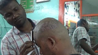 AMAZING AND WEIRD DANDRUFF HEAD SHAVE   /How to a Dandruff head shave/ CS ASMR,,