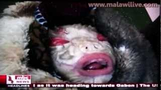getlinkyoutube.com-Shocking: A Baby born with MALFORMATIONS, skin defect or you tell us. Malawi, Salima District