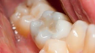 getlinkyoutube.com-Composite Dental Filling