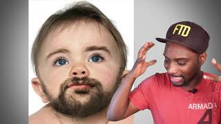 getlinkyoutube.com-1 Yr Old Baby Has Huge Private Part & Facial Hair - Rare Condition