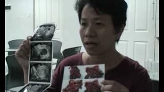 getlinkyoutube.com-cure for endometriosis myoma cyst cancer prostate cervical migraine