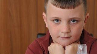 getlinkyoutube.com-The Boy Who Is Allergic To Himself