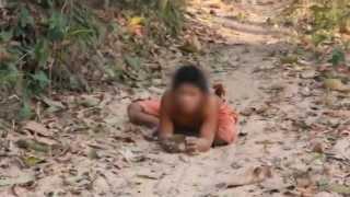 "getlinkyoutube.com-""เด็กเมาคลี"" เดิน-วิ่ง 4 ขา อยู่ในหมู่สุนัข สลดพ่อแม่ทอดทิ้งตั้งแต่เกิด"