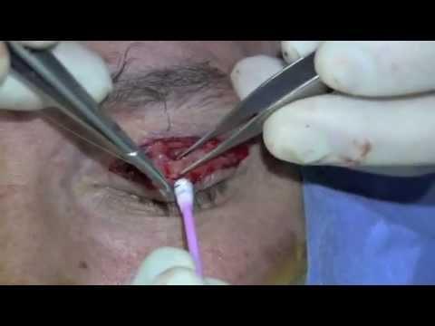Ptosis de párpado. Blefaroplastia y reaplicación del elevador del párpado superior