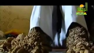 getlinkyoutube.com-شاهد الرجل الشجرة مقطع مؤثر   YouTube