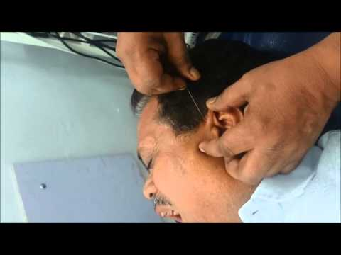 Acupuncture successful treatment for Deafness and Tinnitus