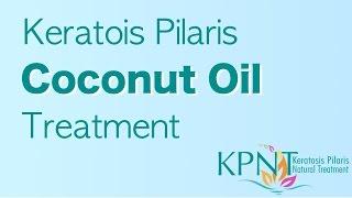 getlinkyoutube.com-Keratosis Pilaris Coconut Oil Treatment Video