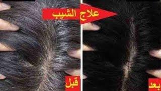 getlinkyoutube.com-خلطة طبيعية وفعالة للتخلص من الشعر الأبيض...جربيها! HD