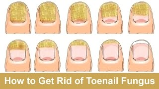 getlinkyoutube.com-How to Get Rid of Toenail Fungus Fast and Naturally
