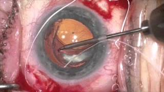 getlinkyoutube.com-Lasso of IOL/capsular bag with Gore Tex suture by Steven G. Safran MD