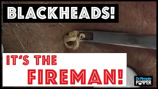 "Don't miss these huge blackhead extractions in ""The Fireman"""