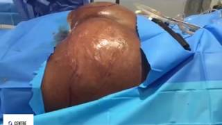 getlinkyoutube.com-Brazilian Butt Lift With Fat Transfer To Hips - Centre for Surgery