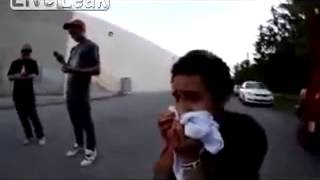 getlinkyoutube.com-Liveleak Offical  -  Skateboard to the face front teeth knocked out Free extraction