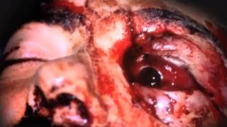 getlinkyoutube.com-Face Peeled Off To Save My Skull - Part 1 - Bizarre ER