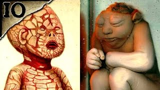 getlinkyoutube.com-10 Horrible Birth Defects | TWISTED TENS #17