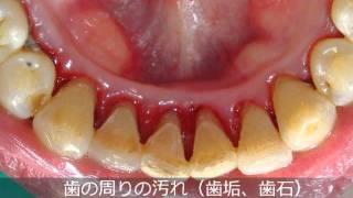 getlinkyoutube.com-歯の汚れ(歯石)のクリーニング2 宇都宮 くにい歯科・矯正歯科
