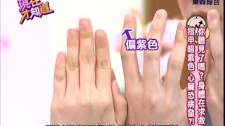 """getlinkyoutube.com-【現在才知道】140210 指甲顏色暗示心臟病?!-Finger Nails Can Tell Your Health- """"Know How"""""""