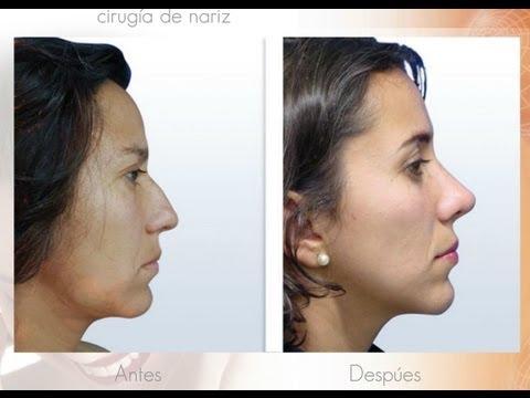 Cirugia de Nariz Especialista en Rinoplastia con Financiacion Cirujano Plastico de Bogota Colombia