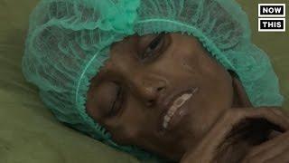 Yemen Is Suffering From Malnutrition
