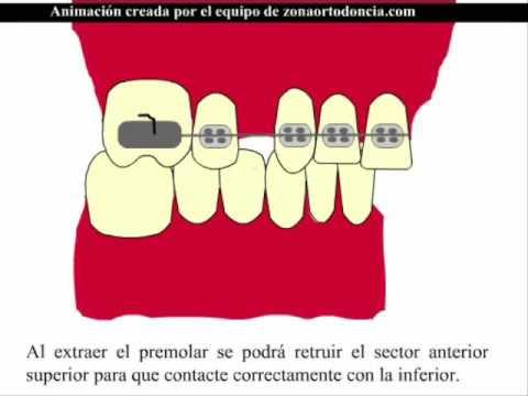 Solución de una clase II dental quitando 2 premolares sup.