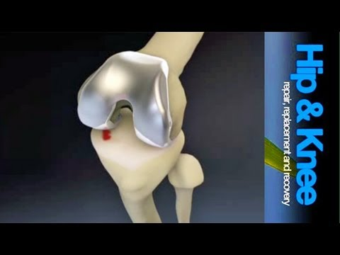Total Knee Replacement Surgery: an introduction