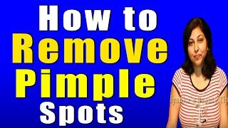 getlinkyoutube.com-How to Remove Pimple Spots II कैसे पाये मुहासों के दाग धब्बों से छुटकारा II By Priyanka Saini