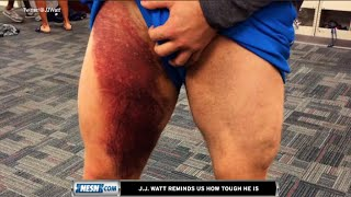 J.J. Watt Reminds Us Of His Toughness With Gruesome Bruise Picture