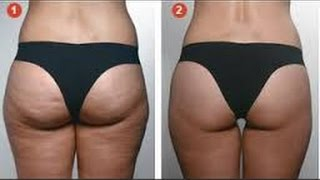 getlinkyoutube.com-How to Get Rid of Cellulite Fast Truth About Cellulite - cellulite removal