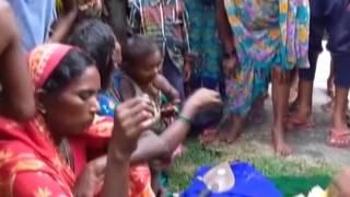 getlinkyoutube.com-महिला ने दिया 3 सिर, दो हाथ और दो पैर वाले बच्चे को जन्म