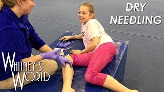 getlinkyoutube.com-Dry Needling | Tough Gymnast | Stick a Needle in my Knees Please