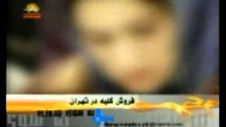 فاجعه فروش کلیه در تهران